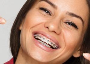 ortodontia com brackets