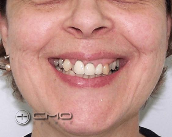 O Sorriso Desejado - Invisalign + Implantes