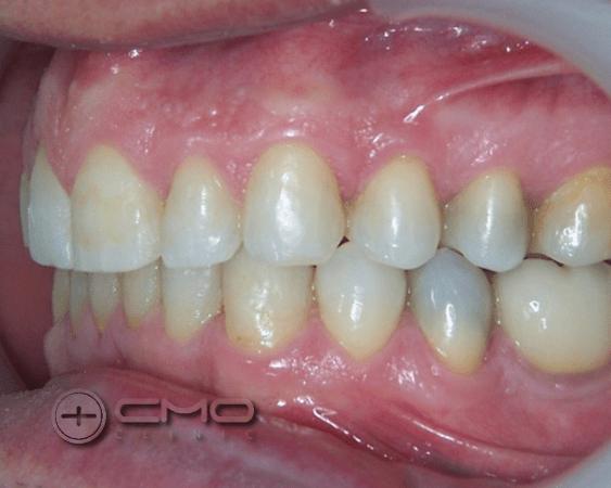 Renovação do Sorriso - Invisalign + Implantes