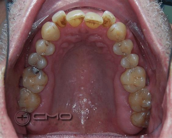 Função e Estética - Invisalign + Implantes