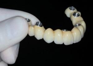 implantes carga imediata