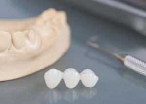 implantes multiplos